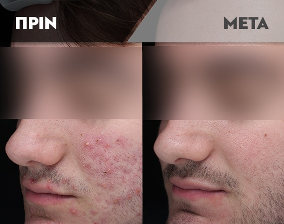 Results-Acne