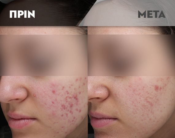 Results-Acne11