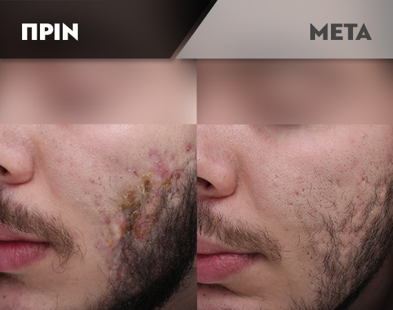 Results-Acne12