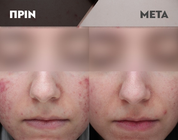 Results-Acne14