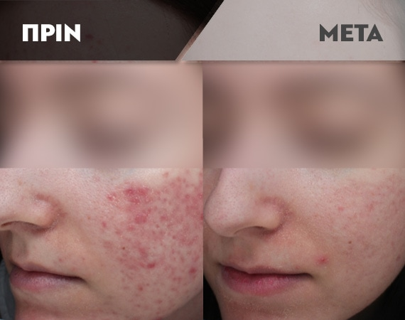 Results-Acne16