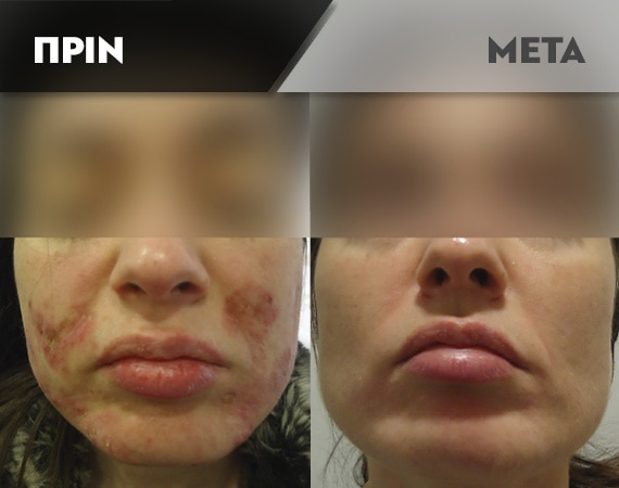 Results-Acne18
