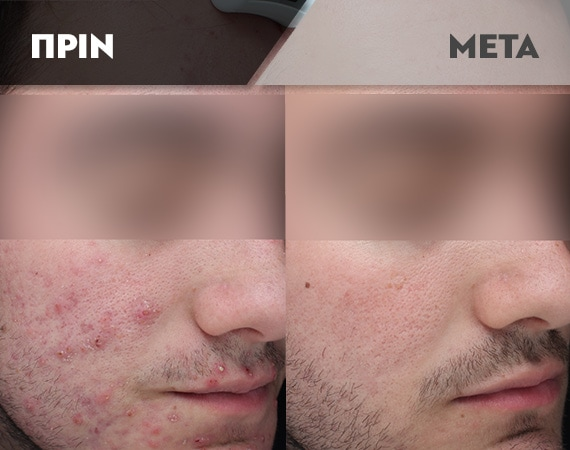 Results-Acne2
