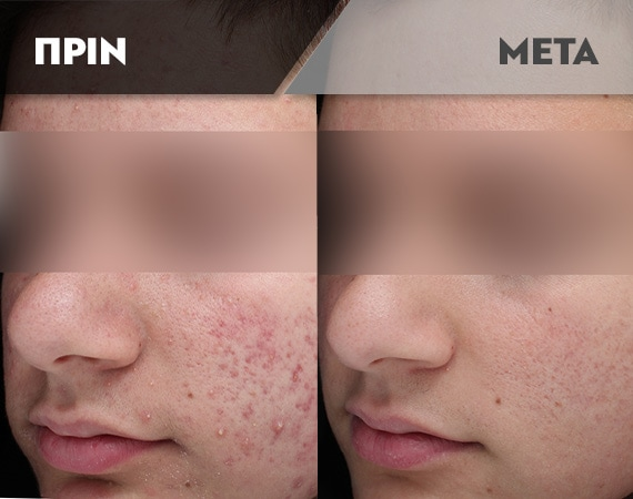 Results-Acne3
