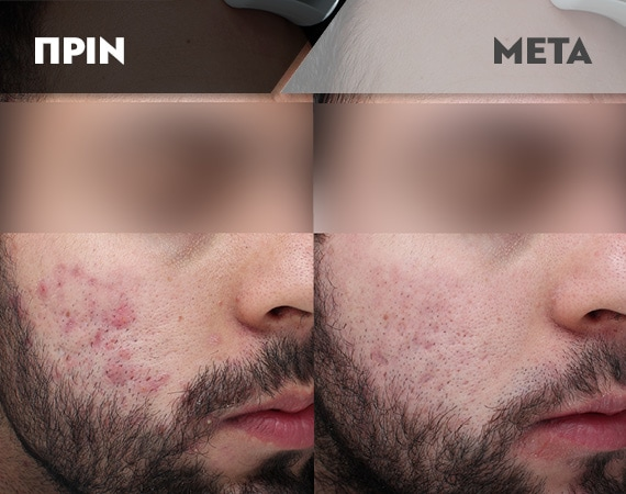 Results-Acne4