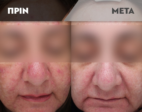 Results-Acne19