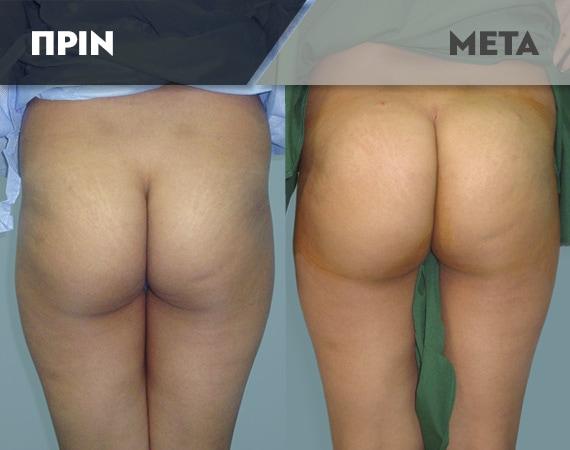 Results-Body2