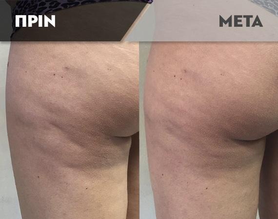 Results-Body3