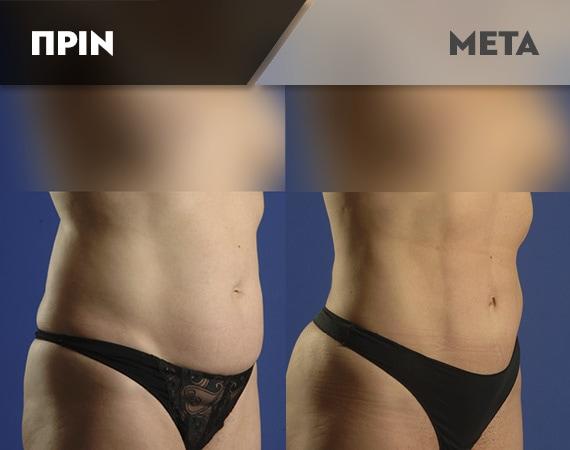 Results-Body4