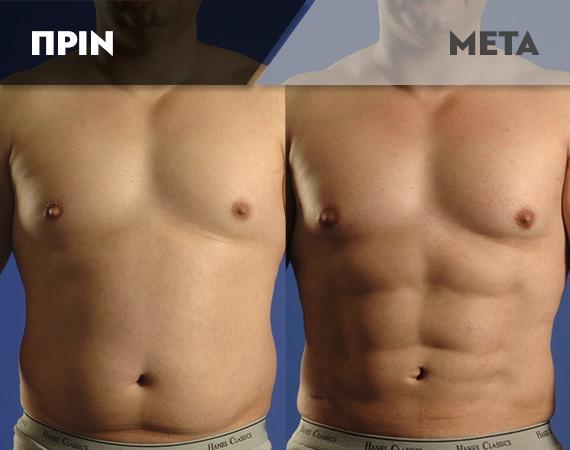 Results-Body5