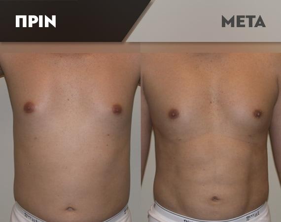 Results-Body6