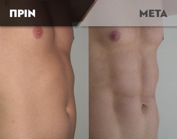 Results-Body7