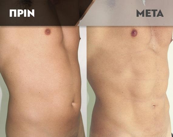 Results-Body8