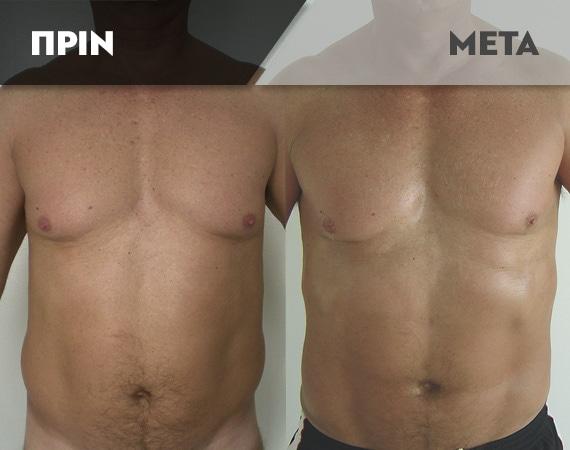 Results-Body9