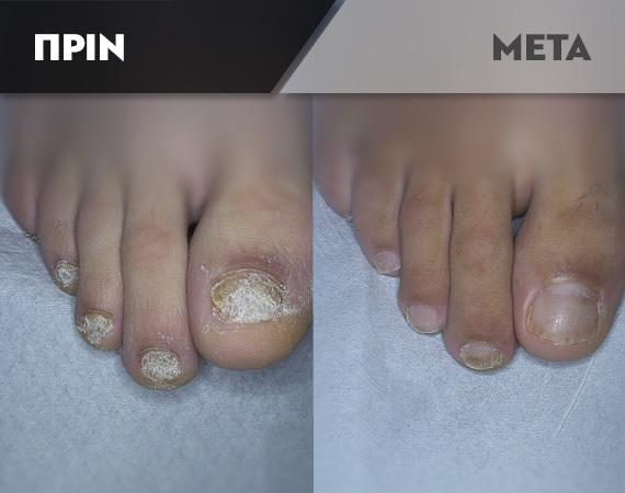 Results-Nails