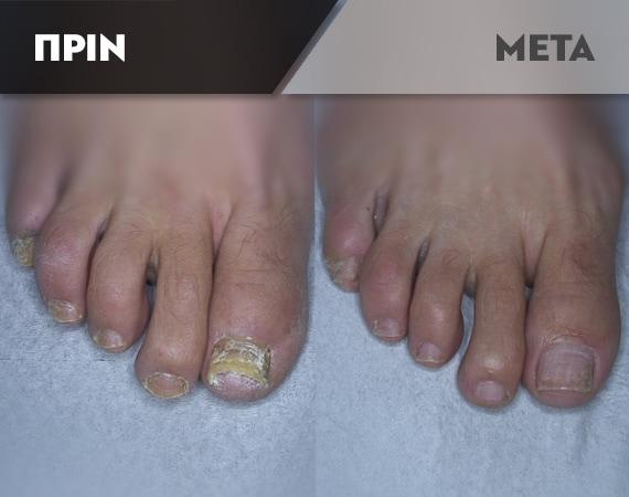 Results-Nails3