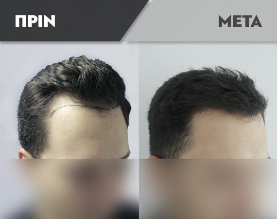 Results-Hair13