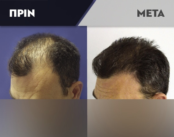 Results-Hair9