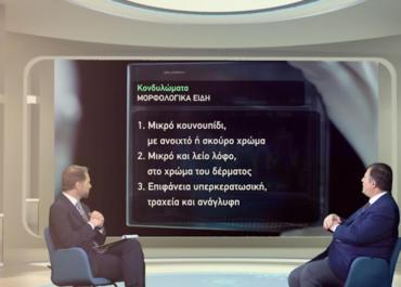 Ο Dr. Τzερμιάς στην εκπομπή «Ίασις» αναλύει όσα πρέπει να ξέρουμε για τα κονδυλώματα
