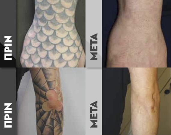 TattooR2