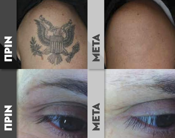 TattooR3