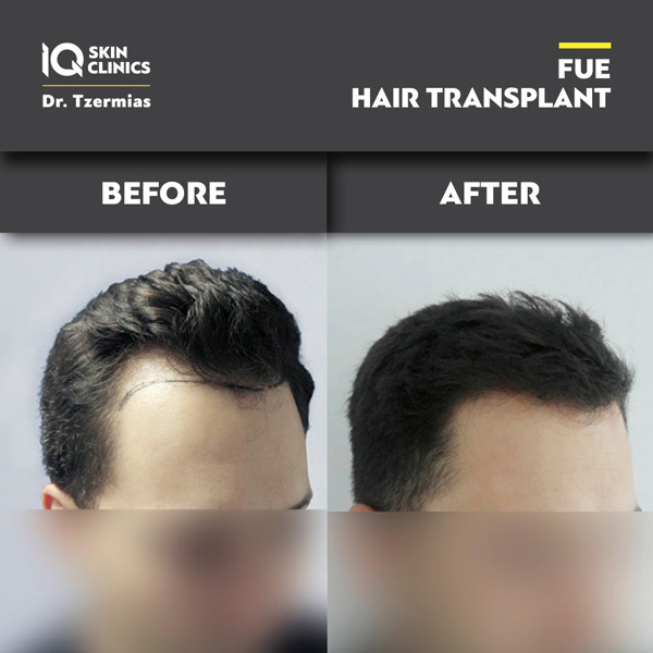 IQ_fue_Results_20205