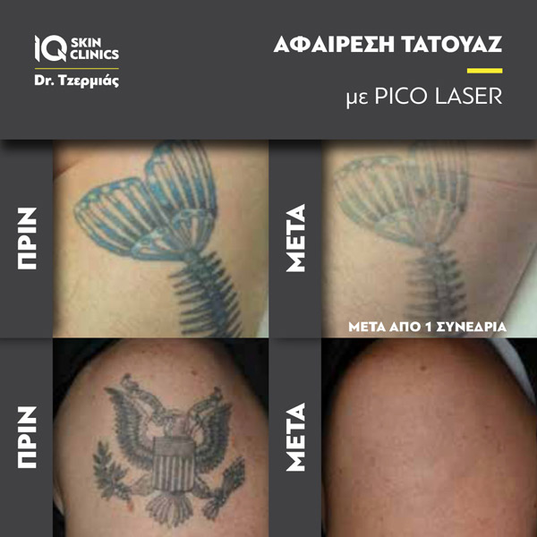 Tattoo_Removal_Results3