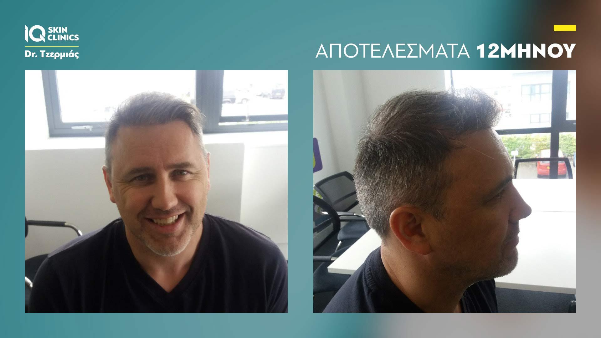 Testimonial: FUE Mεταμόσχευση Mαλλιών | H εμπειρία του Jason Gow