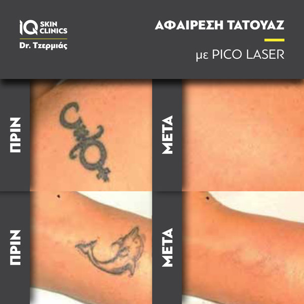 Tattoo_Removal_Results1