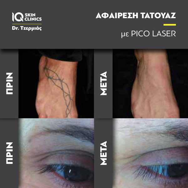 Tattoo_Removal_Results4